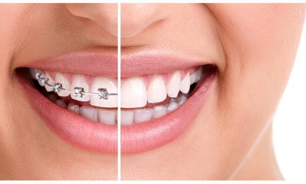mit ortodontyczny