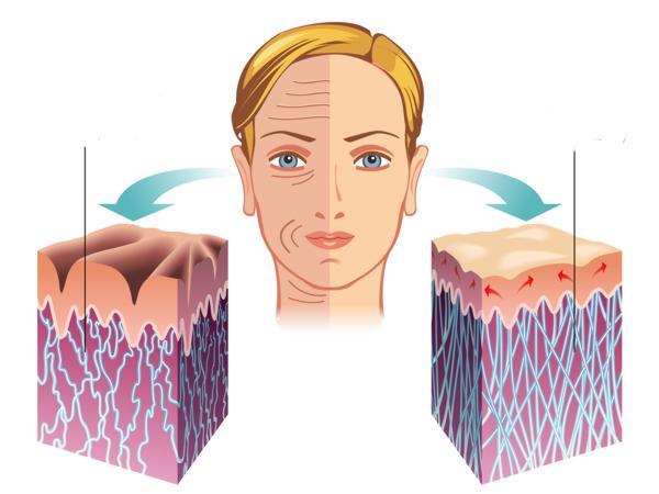 jak uzupełnić kolagen