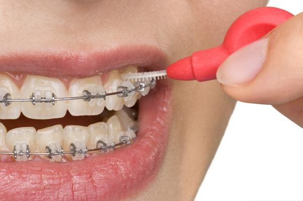 aparat ortodontyczny higiena, aparat ortodontyczny czyszczenie