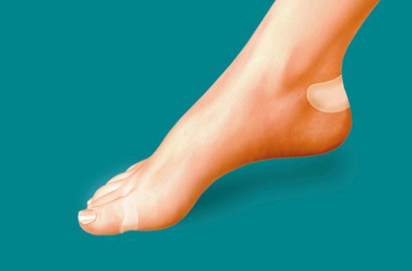 odciski na stopie usuwanie, odciski na stopie jak leczyć