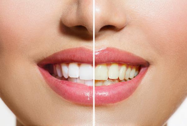 wybielanie zębów, jak wybielić zęby, licówki